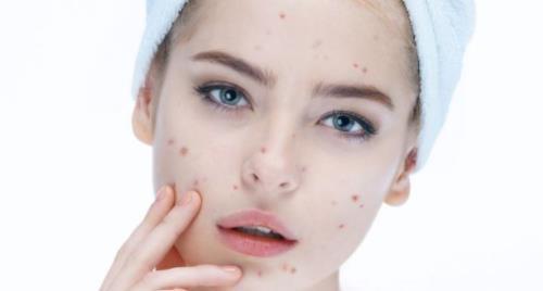 脸上长痘是什么原因 长痘痘了怎么办 痘痘肌肤怎么改善