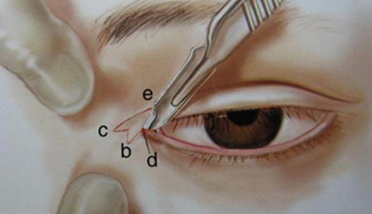 开眼角手术有什么方法 什么样的人群适合开眼角手术