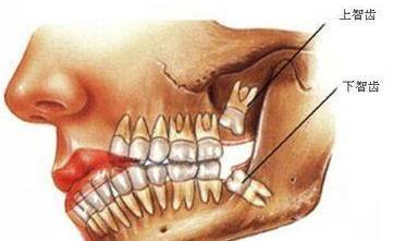 智齿疼痛为什么不能马上拔牙?智齿一定要拔吗?