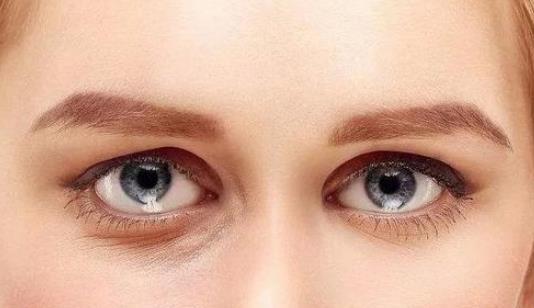 眼袋发黑的原因有哪些?为什么眼袋会疼?