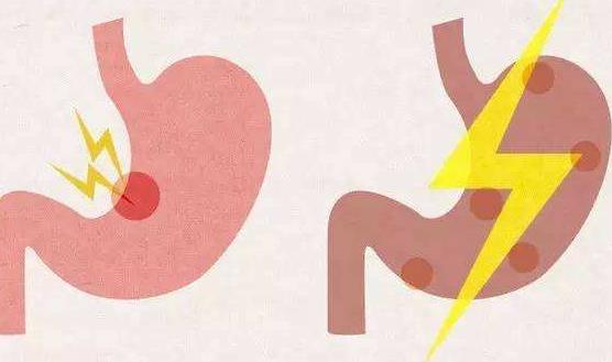 患十二指肠溃疡有哪些并发症?怎么预防十二指肠溃疡?
