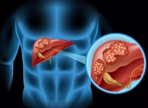 肝癌能治好吗?肝癌是什么原因引起的