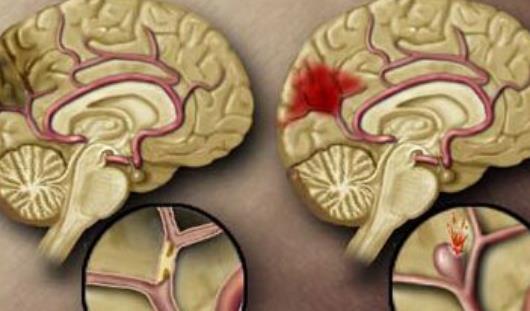出血性脑梗死有哪些分类?出血性脑梗死做哪些检查?