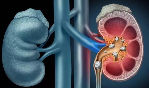 肾绞痛怎么缓解?肾绞痛做哪些检查?