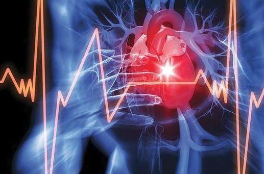 什么是心脏停搏?心脏停搏有哪些症状?