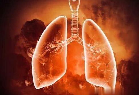 肺气肿的症状有哪些?肺气肿是怎么引起的