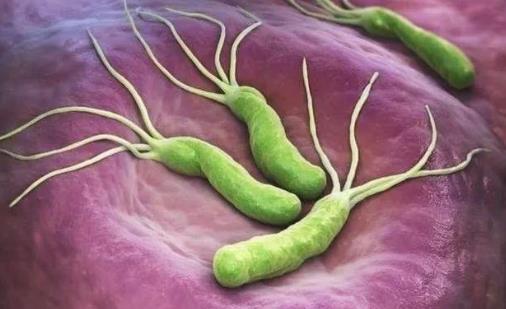 幽门螺旋杆菌会传染吗?幽门螺旋杆菌是怎么得的