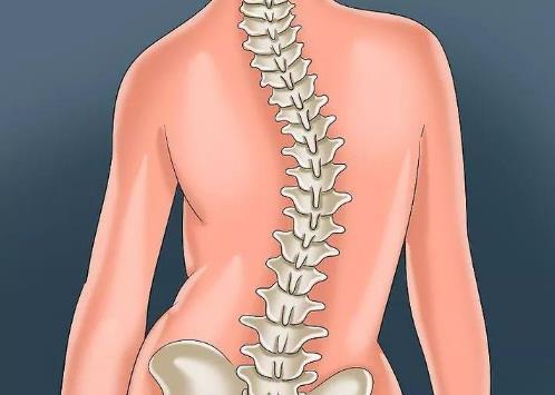 脊柱侧弯矫正器有用吗?脊柱侧弯的危害