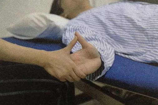 关节挛缩的症状是什么?关节挛缩是怎么引起的