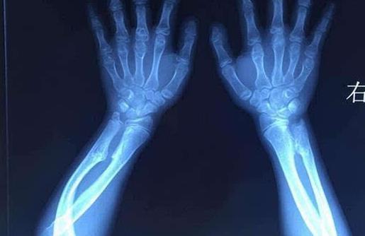 骨软骨瘤是怎么引起的?骨软骨瘤的症状是什么
