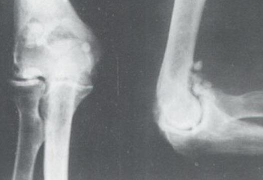 骨软骨瘤严重吗?骨软骨瘤的饮食注意事项