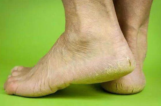 冬天脚后跟开裂口怎么办 脚底干裂粗糙开口子用什么药膏管用