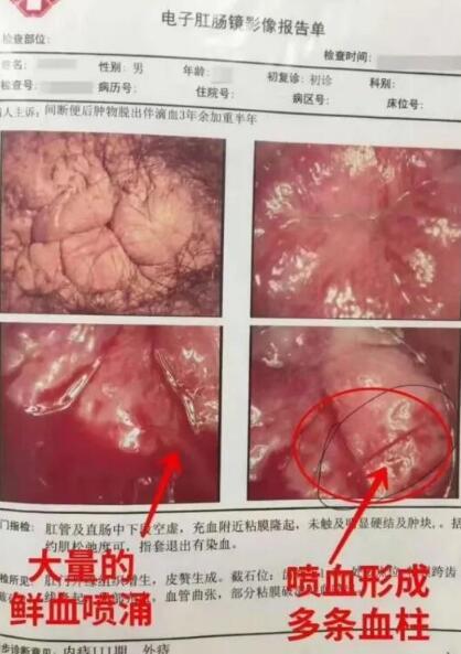 """襄阳东大肛肠医院:一便血就""""消火""""?请看完这几个被耽误的案例"""