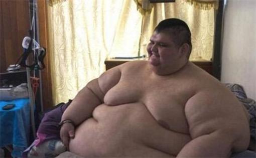 墨西哥最胖的人 Juan Pedro Franco体重曾达半吨