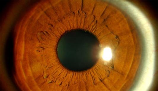 第一例成功的角膜移植手术 萨米埃尔比格为瞪羚移植角膜