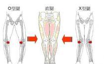 5种走路姿势会让你变成O型腿