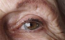 老人患上白内障的症状是什么