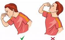 流鼻血时 有时塞个棉花球反而会休克