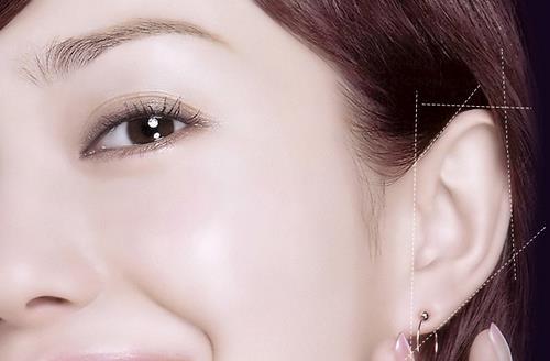 耳部整形手术注意事项