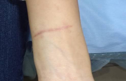 疤痕增生怎么办