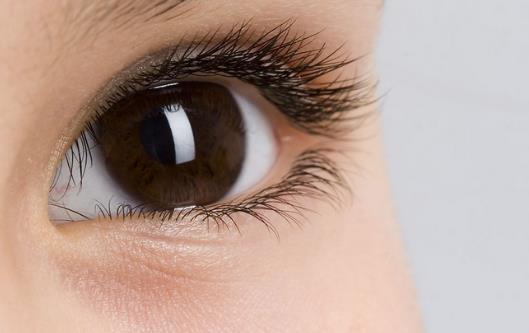 眼睛有紅血絲是怎麼回事