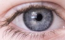 眼睛不健康的常见症状