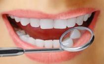 揭秘对洗牙的误区有哪些