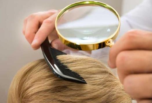 引起脱发的原因 学会这些方法远离掉头发