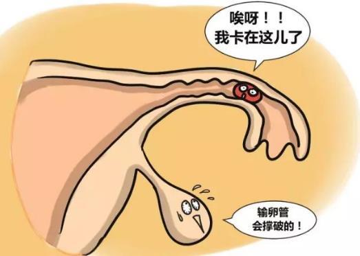 输卵管妊娠的自我检查、症状及治疗方法