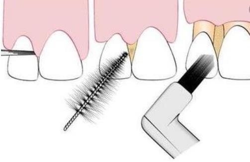 牙龈老出血 是你的身体向你发出警告了