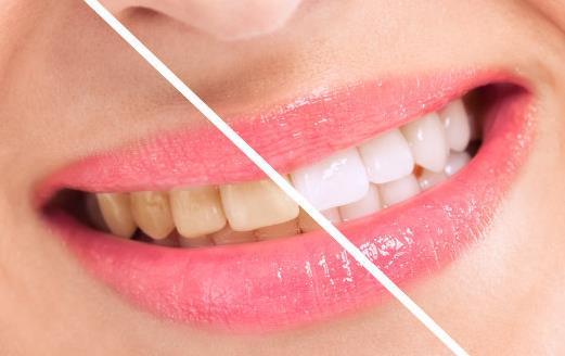 美白牙齿有妙招 这些方法助你牙齿白白