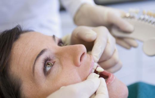 洗牙问题大揭秘 全方位告诉你洗牙好与坏