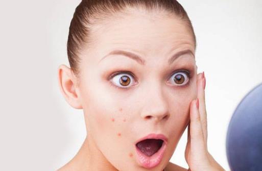 六大因素导致脸颊长痘 去除脸上痘痘的小妙招