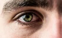 眼屎多是你的眼睛生病了 引起眼屎原因复杂