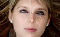 女人脸上斑点产生的原因以及消除方法