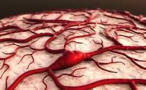 脑出血发生前兆的症状 保持心情舒畅预防脑出血