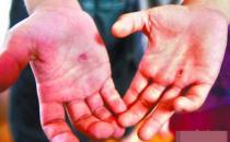 手上长水泡马上去医院 预防汗疱疹时的八大注意细