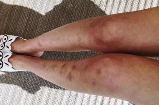 腿上莫名有淤青真是被鬼掐的吗