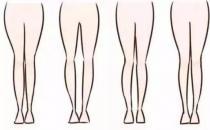 O型腿不是靠绑就能拉直的 大腿纹不对称家长要留神