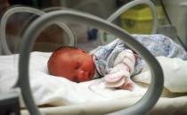 科学治疗新生儿黄疸 新生儿出现黄疸学会这样护理