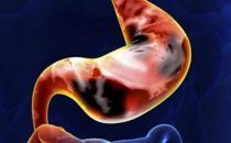胃癌活动期的饮食禁忌 晚期胃癌患者的护理大全