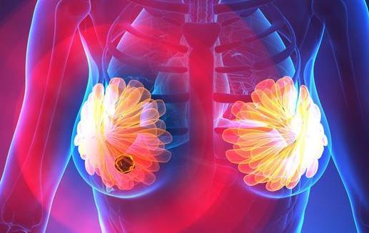 乳腺结节对女性危害大 乳腺结节形成的原因及预防