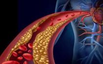 血液粘稠身体会出现的信号 血液粘稠饮食控制总原则