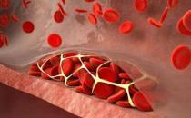 七类人重点防血栓 冲走血栓防住六成血管病