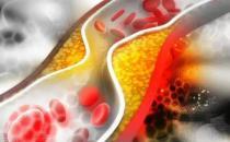 身上疼痛可能是血管堵了 细节养出健康不给血管添堵