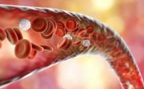 醋红酒鱼油是否能软化血管 软化血管不能吃的食品