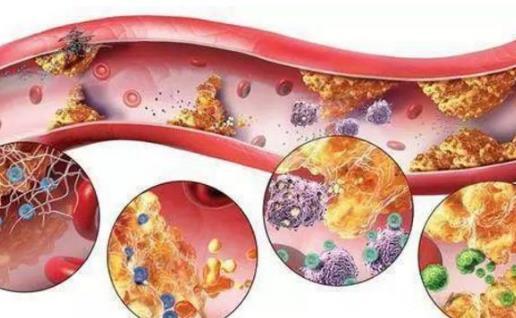 高血脂是现在高发的疾病之一,它本身属于代谢类疾病,但