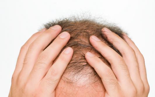 男人总是会出现脱发现象 改善男性脱发的食物推荐