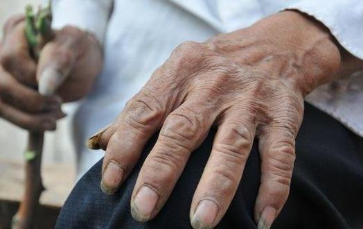 胆固醇高影响老年人健康 降胆固醇食物推荐
