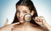 敏感肌护肤温柔呵护是关键 过敏后的肌肤要降温镇定